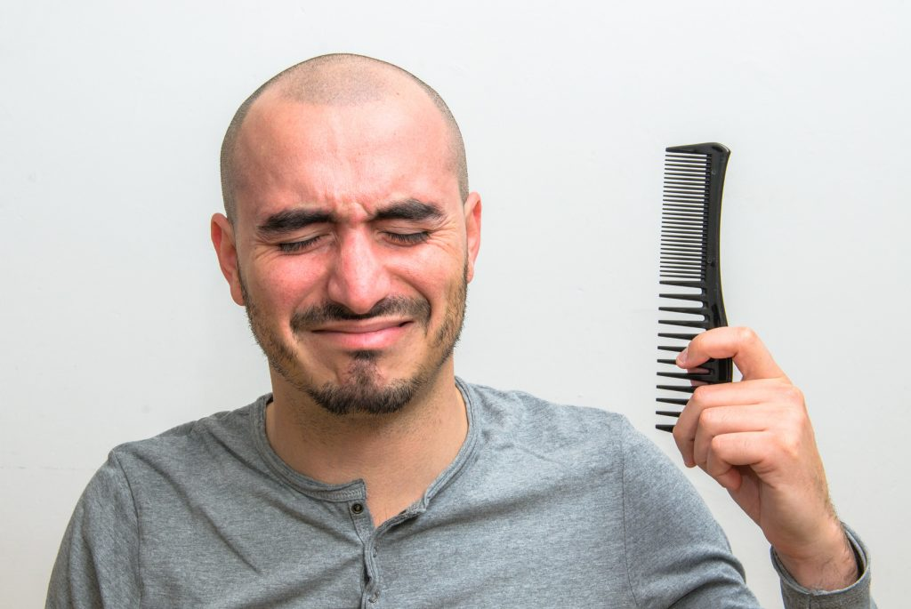 One theory behind male baldness: Excess DHT.