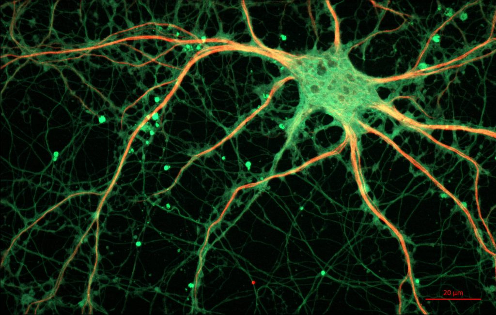 rat hippocampal neuron