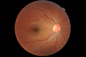 By OptometrusPrime (Fundus Photo, Right Eye (OD)) [CC BY-SA 2.0], via Wikimedia Commons
