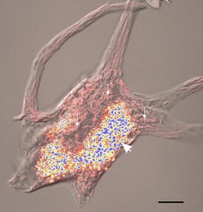 Pictured: A neuron from the spinal cord; yellow structures are the lipofuscin granules that centrophenoxine may help keep in check. By David L McIlwain, Victoria B Hoke [CC BY 3.0], via Wikimedia Commons