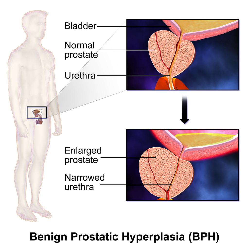 Benign_Prostatic_Hyperplasia_(BPH)