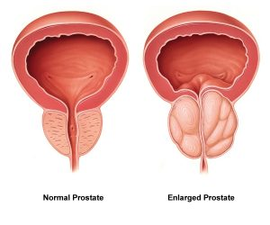 Prostate supplement guide illustration of enlarged prostate versus normal prostate