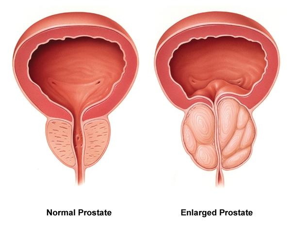 Normal-vs-enlarged-prostate