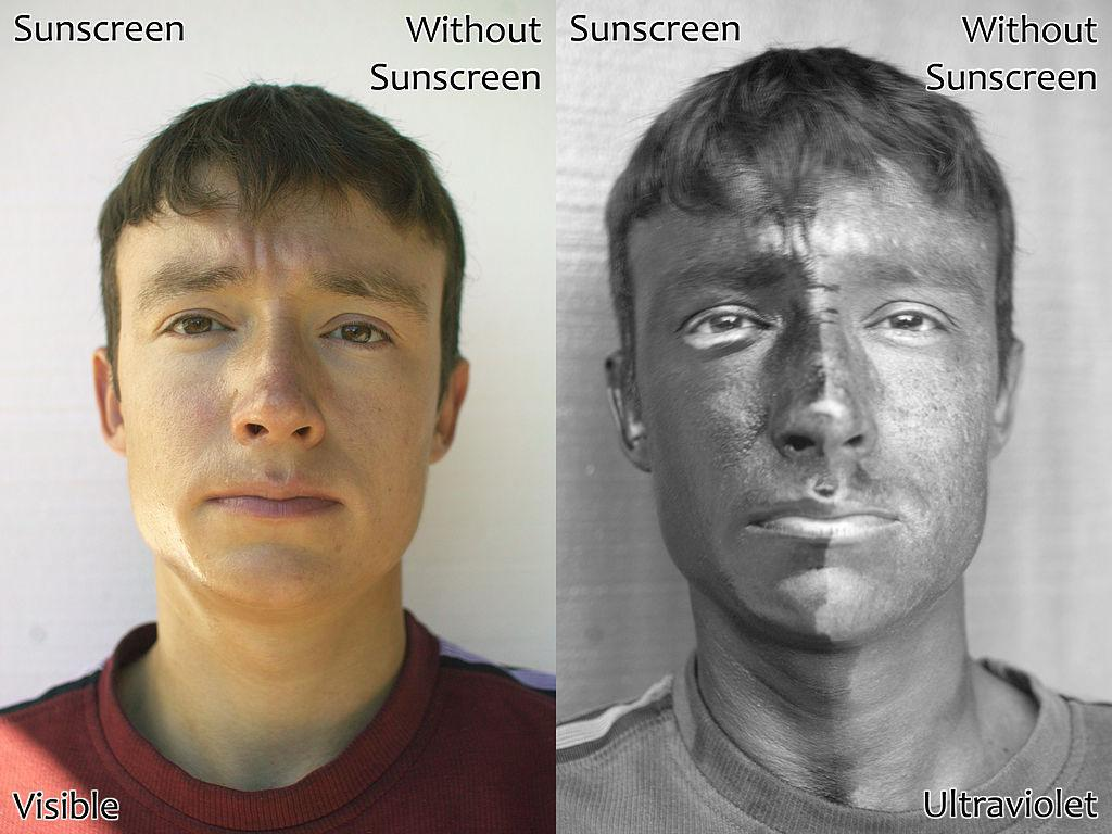 ultraviolet light sunscreen skin